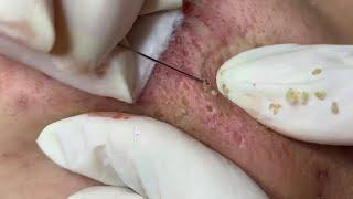 blackhead removal on face satisfying #43 | Top Best Pimple Popping Videos 2019