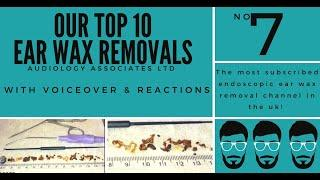 TOP 10 EAR WAX REMOVAL VIDEOS - NUMBER 7