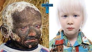 Top 10 Most Unusual Kids You Won't Believe Actually Exist