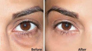 How To Get Rid Of Eye Bags l Home Remedies For Bags Under Eyes