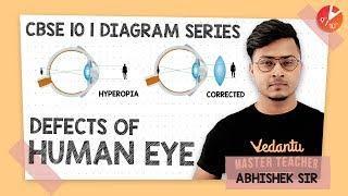 Defects of Human Eye Diagram | Diagram Series | CBSE Class 10 Physics Chapter 11 | Vedantu Class 10