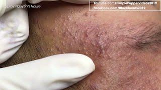 How to removal blackheads on face so relax #31 | Top Best Pimple Popping Videos 2019