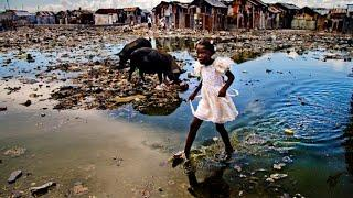 TOP 10 WORLDS POOREST COUNTRY
