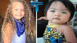 Top 10 Most Unbelievable And Unusual Kids With Amazing Features In The World