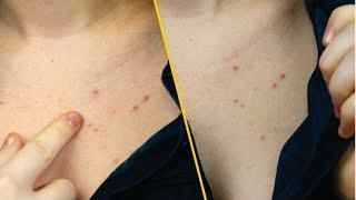 Top Natural Remedies to Get Rid of Chest Acne Fast - Home Remedies Chest Acne Treatment