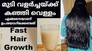 കഞ്ഞി വെള്ളം മുടിയിൽ എങ്ങനെയാണ് ഉപയോഗിക്കുക || Rice Water for Hair Growth || top10