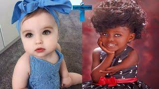 Top 10 Most Unusual Kids Around The World   Kids With Unique Features