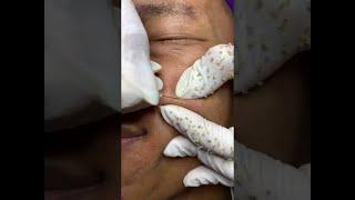 blackhead removal on face satisfying #45 | Top Best Pimple Popping Videos 2019