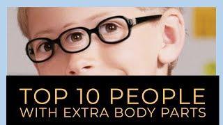 Top 10 People With Extra Body Parts    10 ऐसे लोग जिन्हे कुदरत ने दिए है 'EXTRA BODY PARTS'