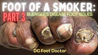 Buerger's Disease, Feet of a Smoker Part 3: Trimming Thick Toenails and Wound Care