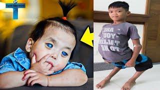Top 10 Unusual And Amazing Kids Around The World You Won't Believe Exist