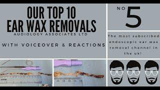 TOP 10 EAR WAX REMOVAL VIDEOS - NUMBER 5