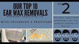 TOP 10 EAR WAX REMOVAL VIDEOS - NUMBER 2