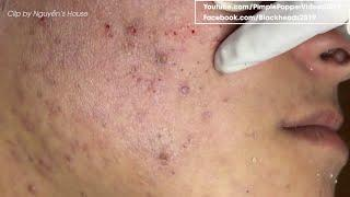 How to removal blackheads on face so relax #34 | Top Best Pimple Popping Videos 2019