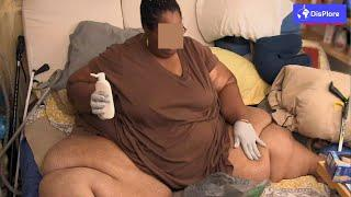 Top 10 African Countries With the Most Obese Population