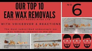 TOP 10 EAR WAX REMOVAL VIDEOS - NUMBER 6