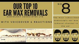 TOP 10 EAR WAX REMOVAL VIDEOS - NUMBER 8