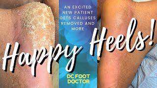 Happy Heels: Heel Callus Removal and Toenail Trimming Equal an Amazing Transformation (New Patient)