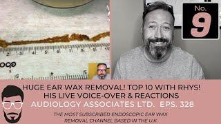 TOP 10 EAR WAX REMOVAL VIDEOS - NUMBER 9
