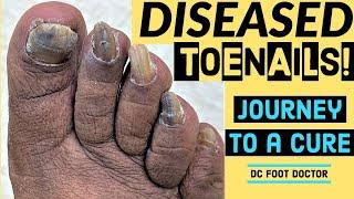 Diseased Toenails, Journey To A Cure: Trimming Fungal Toenails (Onychomycosis)