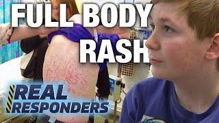 Teenager Gets Full Body Rash Before School Trip| Temple Street Children's Hospital | Real Responders