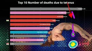 Top 10 Number of deaths due to tetanus