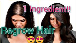 Top 3 home made remedies for hair fall problem| Regrow Hair| Safe for hair