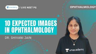 Top 10 expected images in Ophthalmology | Dr. Shivani Jain