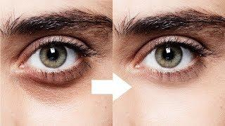 How To Get Rid Of Bags Under Eyes Men | Remove Under Eye Bags | Eye Bags Treatment For Men