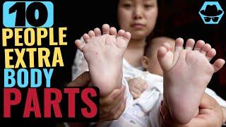 Top 10 People with Extra Body Parts - 2020 interesting facts interesting information